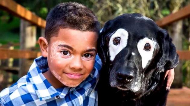 Детенце со витилиго ја мразело својата кожа  додека не запознало куче со иста  шара  како неговата
