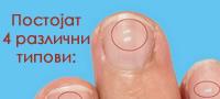 Што значат белите линии на ноктите?