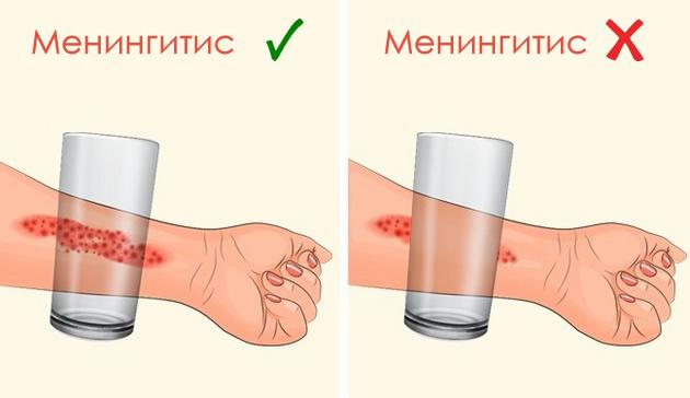 7-simptomi-na-meningitit-koi-sekoj-roditel-treba-da-gi-znae-08.jpg