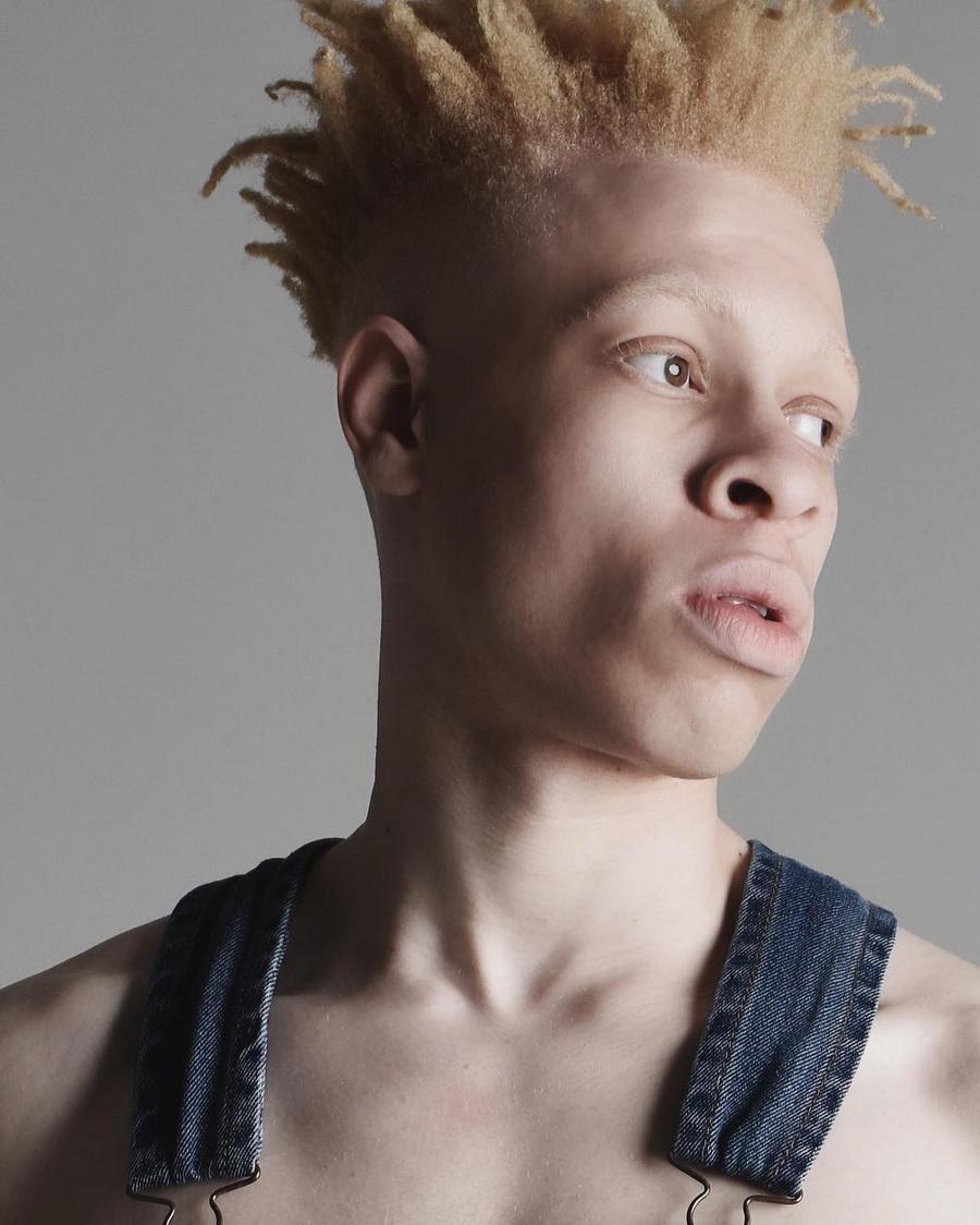 albino black model - 500×624